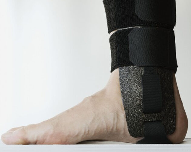 Eco-friendly splints developed for hospitals  make their debut in sports